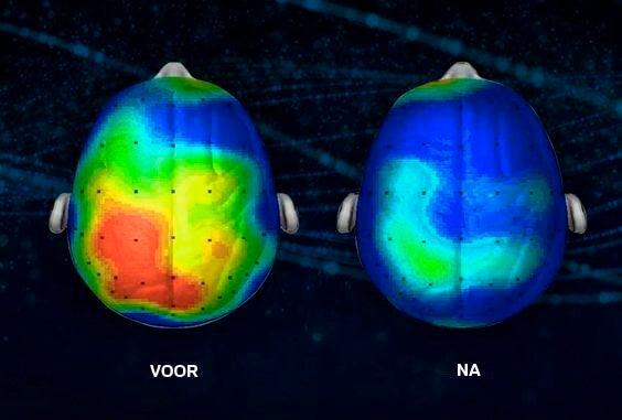 Voor En Na Afbeelding Van Het Effect Dat Meditatie Heeft Op De Hersenen Want Meditatie Kan De Geest Ontspannen