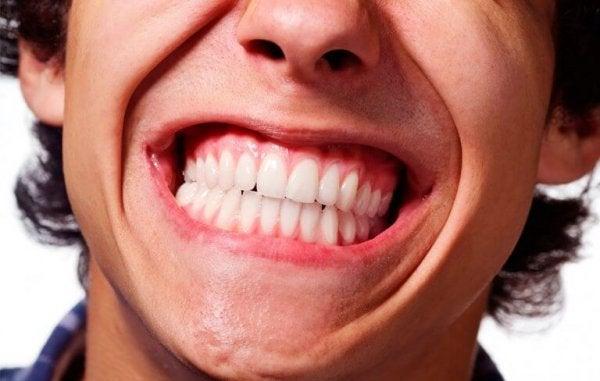 Een man die last heeft van tandenknarsen