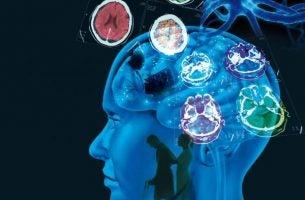 Hersenen van patiënt met multiple sclerose