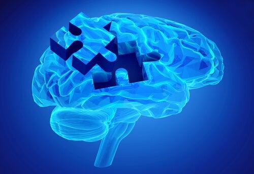 Puzzelstukje uit de hersenen