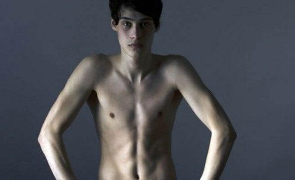 Problemen tijdens de adolescentie met voeding