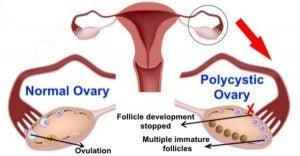 Polycysteus-ovariumsyndroom