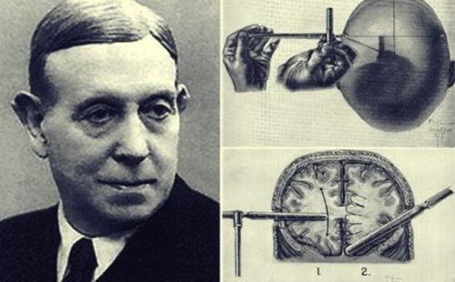 Het verhaal van de lobotomie, een uitvinding van Egas Moniz
