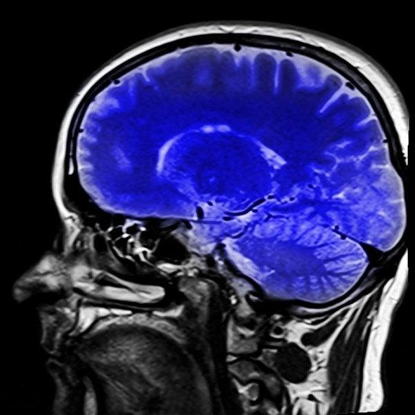 Een trombose in de hersenen
