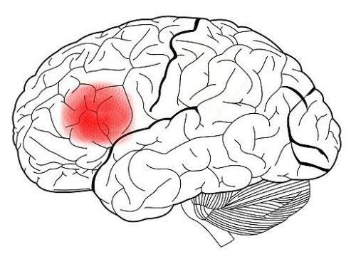 Gebied van Broca in de hersenen