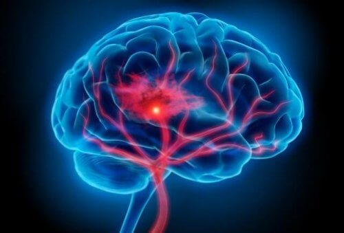 Serotoninesyndroom: symptomen en behandeling