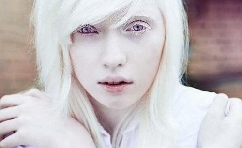 Leven met albinisme: meer dan lichamelijk voorkomen