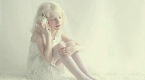 Meisje dat lijdt aan albinisme