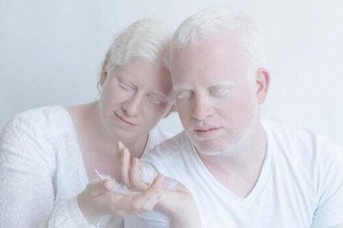Koppel met albinisme