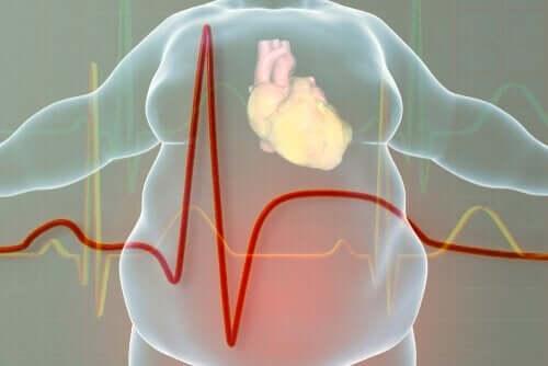 Het hart van een dik persoon
