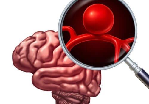 Een uitvergroting van een hersenaneurysma