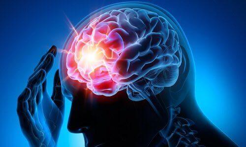 Afbeelding van een aneurysma in de hersenen