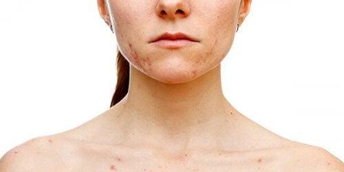 Een vrouw met vlekken op de huid
