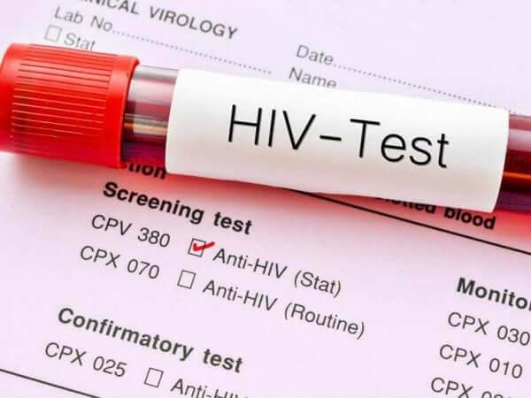 Denk na over een hiv-test op wereldaidsdag