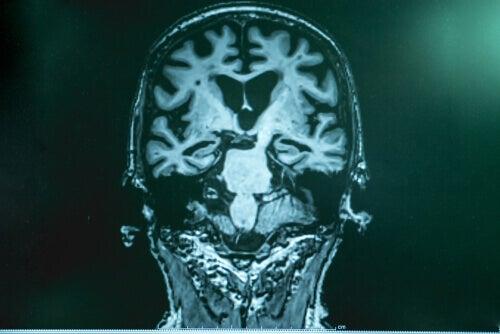 Hersenen van iemand met ziekte van Alzheimer