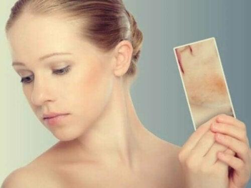 Stressuitslag: wanneer je huid reageert op je emoties