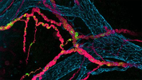 De verbinding tussen de hersenen en darmen